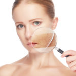 Was hilft gegen Akne bei Erwachsenen?