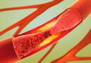 Ablagerung und Verengung einer Arterie - Arteriosklerose